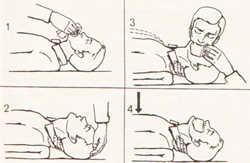 Беременность и псориаз