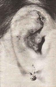 Сибирское здоровье лечение от псориаза отзывы